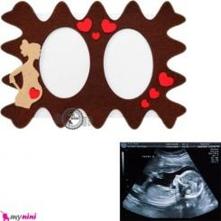 قاب عکس سونوگرافی و بارداری نی نی و مادر Baby sonogram picture frame